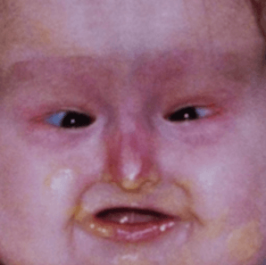 338282317_faceBaby.png.e8927968feab1f10dd797784d2eb589a.png